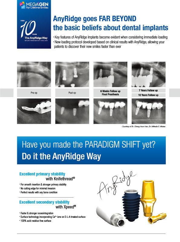 Anyridge goes FAR BEYOND the basic beliefs about dental implants