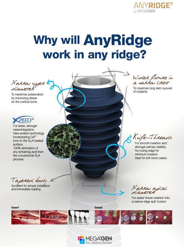 Why will AnyRidge work in any ridge?