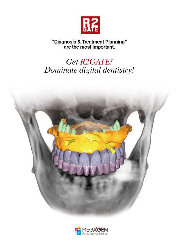 Get R2GATE! Dominate digital dentistry!