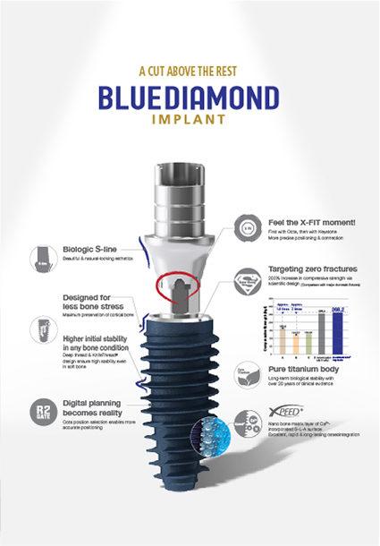 Masterpiece of Implant Technology, BlueDiamond Implant!